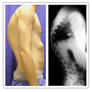 scheuermanns-disease-kyphosis-postural
